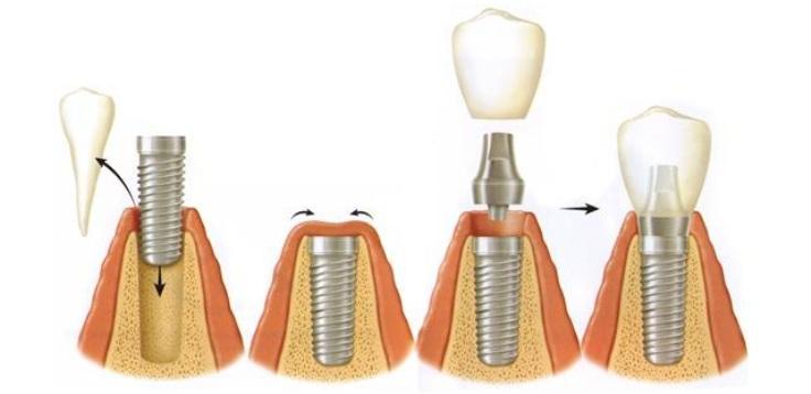 Этапы процедуры имплантации зубов