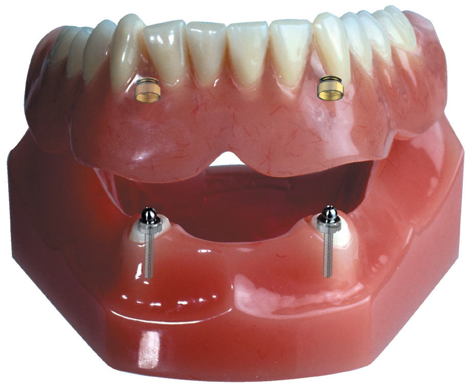 Зубные импланты одесса