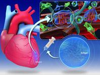 Кардиологи смогли восстановить сердечную мышцу после приступа