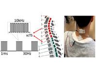 Электростимуляция — реальное решение для людей с частичным параличом