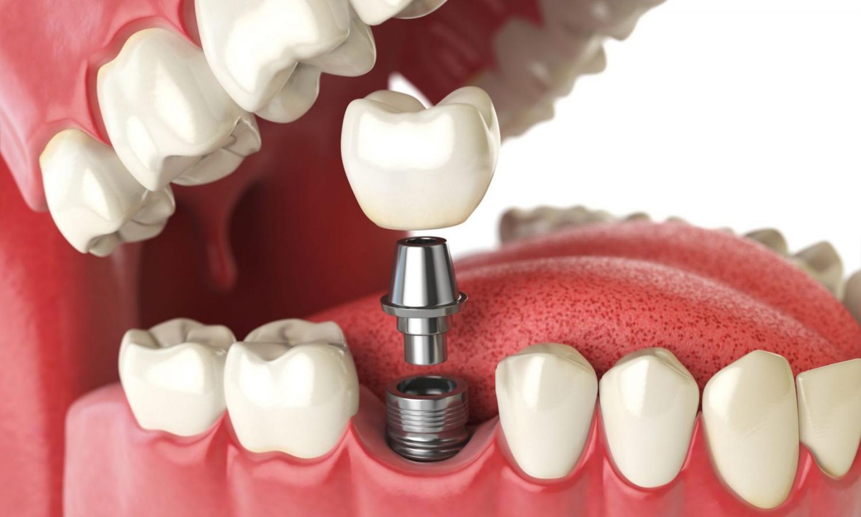 Каков срок службы зубных имплантов?