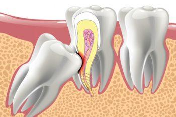 Как подготовиться перед удалением зуба мудрости?