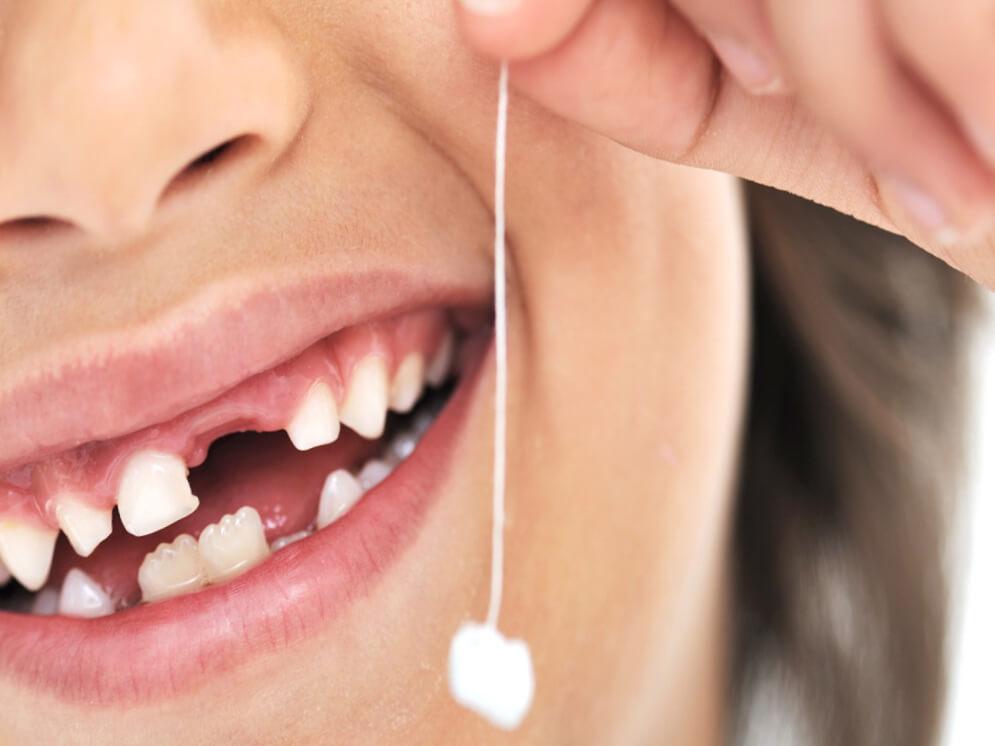 Удаление молочных зубов у детей: причины, особенности