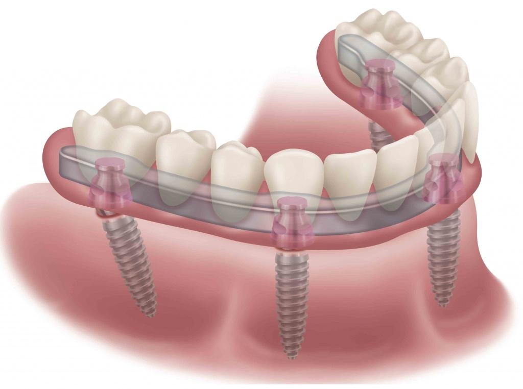 Имплантация зубов в Москве: как выбрать подходящую клинику?