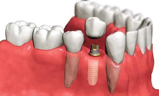 Имплантация зубов: все тонкости и особенности