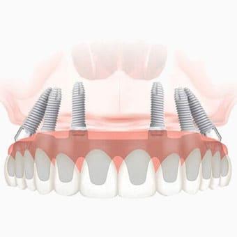 Технология и особенности имплантации методом All-on-6