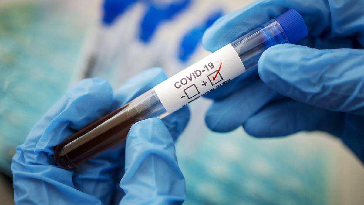 Как работают тесты на коронавирус?