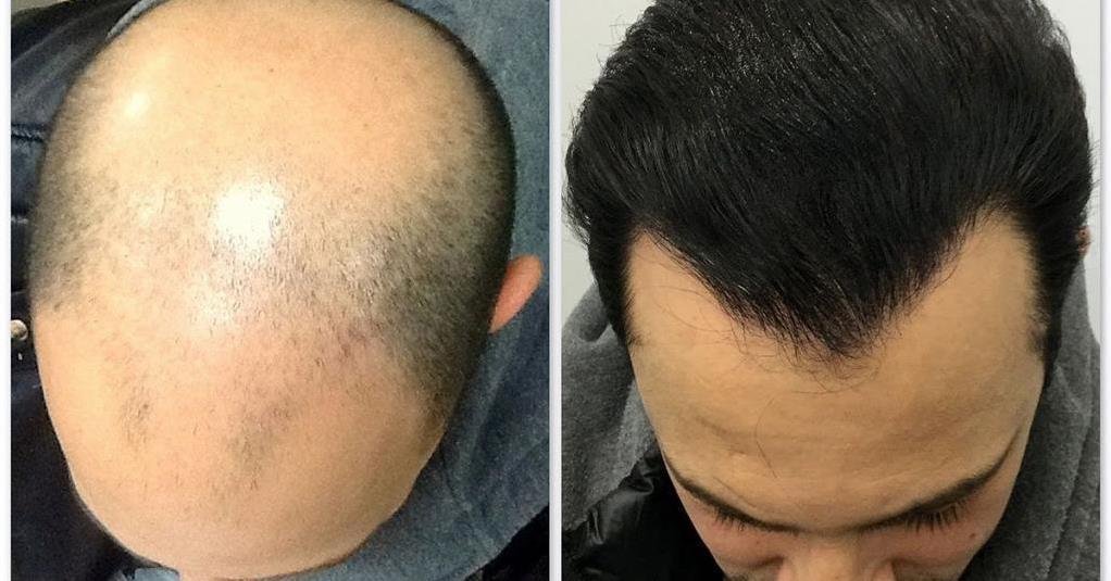 Как работает пересадка волос у мужчин?