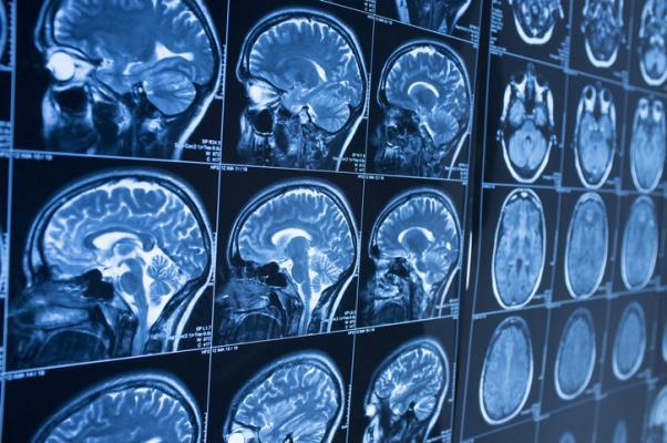 Основные аспекты технологии проведения МРТ