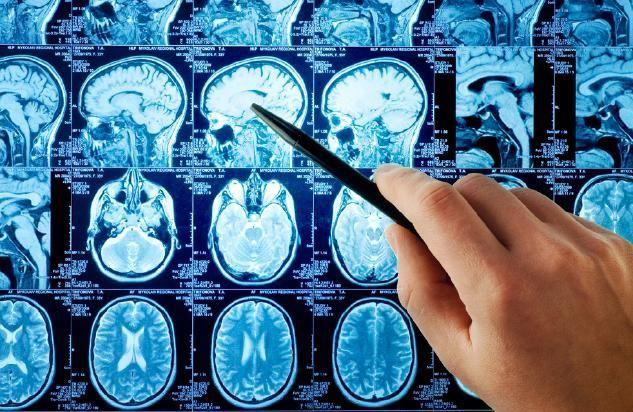 Эффективность МРТ в диагностике опухолей головного мозга