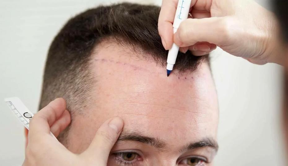 Современный метод пересадки волос на голове