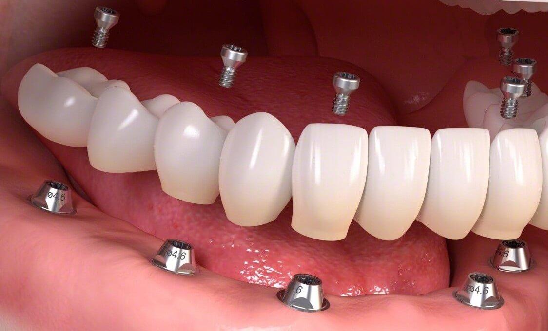 Протезирование челюсти при отсутствии всех зубов