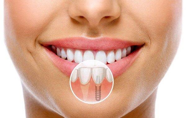 Установка зубного импланта: этапы и сроки, технологии