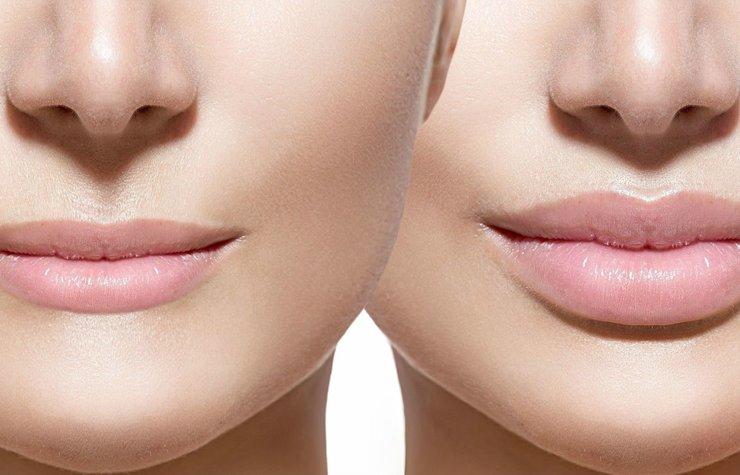 Процедура по увеличению губ: техники и результаты