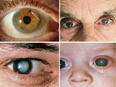Глаукома глаза - симптомы и лечение (капли, операции)